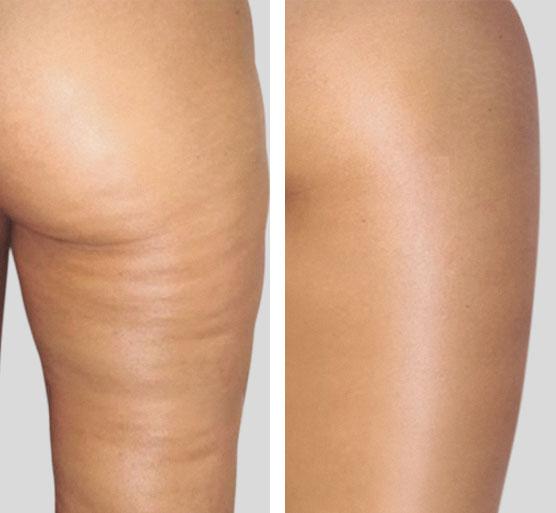 Tratamiento de glúteos y muslos antes y después.
