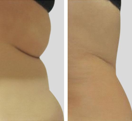 Resultados Tratamiento de las caderas antes y después.
