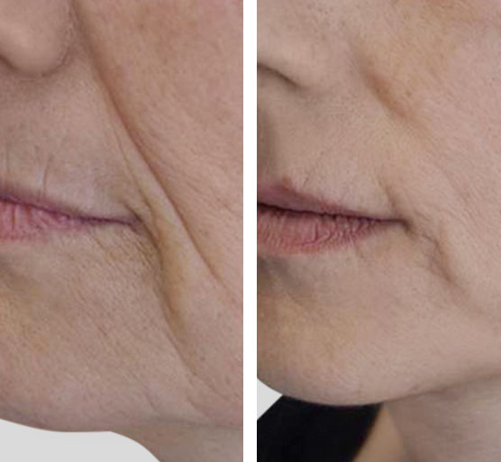 Resultados Tratamiento antiarrugas antes y después.